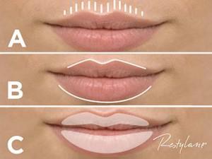 Lippen_aufspritzen